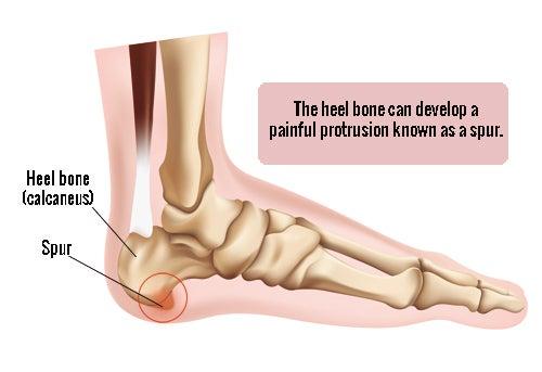 smerter i hælen efter hvile