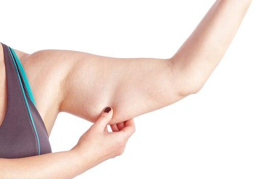 Kvinde med loes hud paa armen