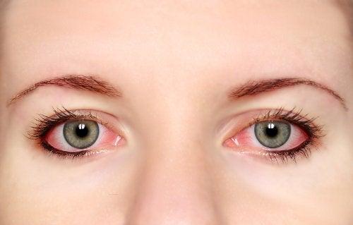 5-pink-eye