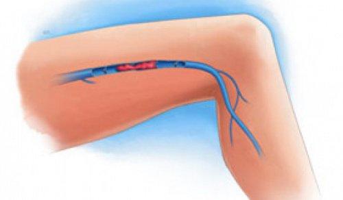 blodprop i låret symptomer