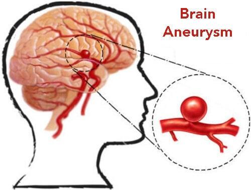 Det bør du vide: Opdag og forebyg aneurismer