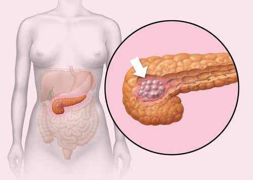 Tips til en sundere bugspytkirtel