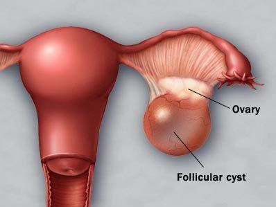 Byld på livmoderen