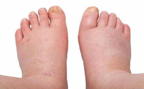 Seks midler mod hævede ankler, fødder og ben