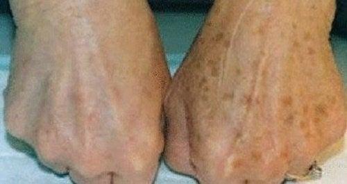 Sådan mindskes skønhedspletter på hænderne