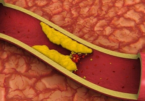 Sådan kontrolleres højt kolesterol naturligt