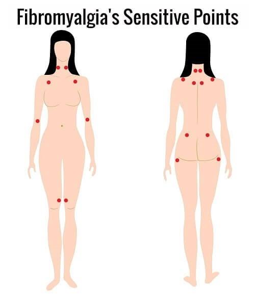 FibromyalgiSensitivePunkter