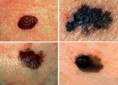 Sådan kan du opdage hudkræft inden det er for sent