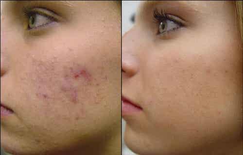 4 hjemmelavede ansigtsmasker imod akne