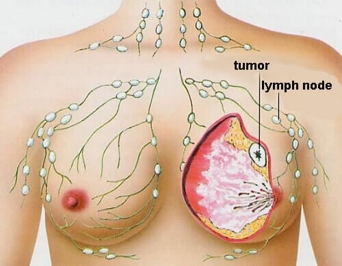 De 5 mest almindelige typer af kræft hos kvinder