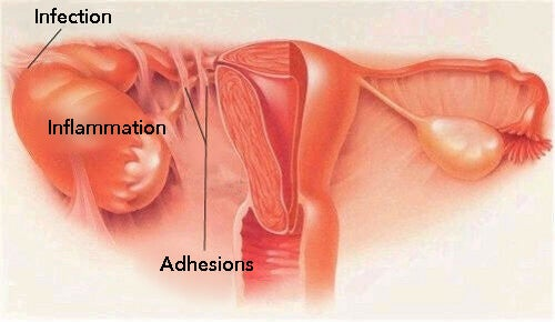Symptomer på underlivsbetændelse