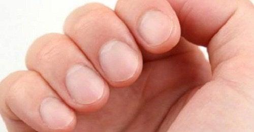striber på neglene