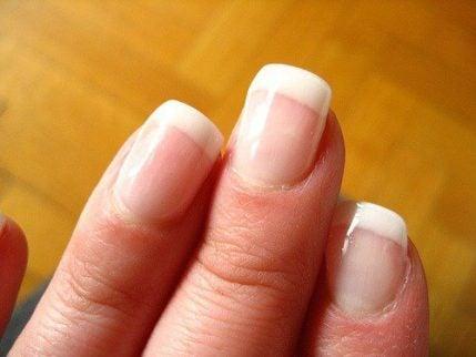 hvide negle sygdom