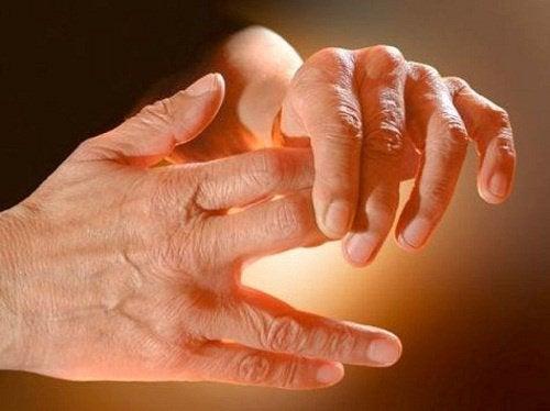 Følelsesløshed og snurren i hænder og fødder - hvorfor?