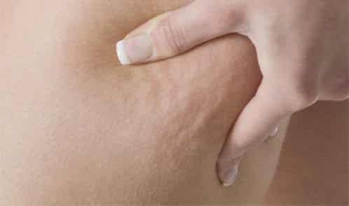 Undgå disse 7 fødevarer og kom af med cellulitis
