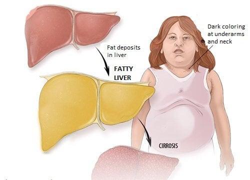 Det er vigtigt at du gør noget for at behandle din fedtlever