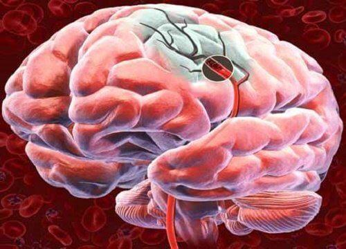 5 metoder til at øge blodtilførslen til hjernen
