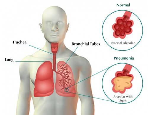 Symptomer på lungebetændelse og behandlinger