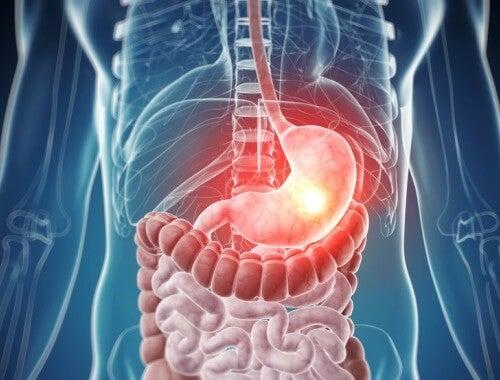 Sådan ved du om din krop er forgiftet
