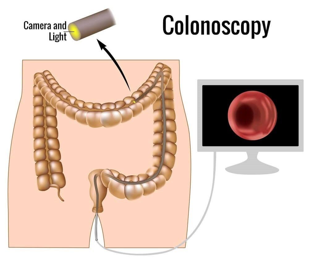colonoskopi