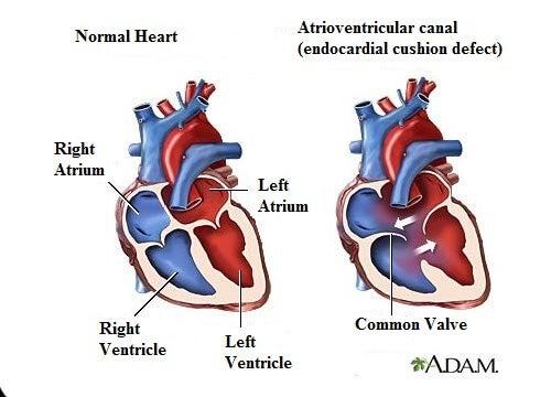 7 symptomer på hjertemislyde, du bør kende!