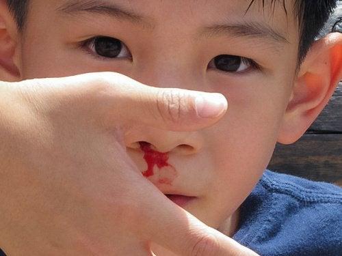 næseblod