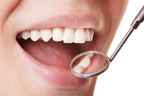 Sådan fjerner du nemt plak fra tænderne derhjemme
