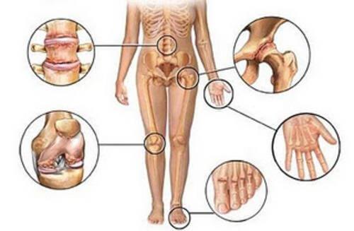 Ledsmerter: Fem naturlige antiinflammatoriske midler