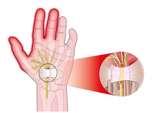 5 måder at lindre smerten fra karpaltunnelsyndrom