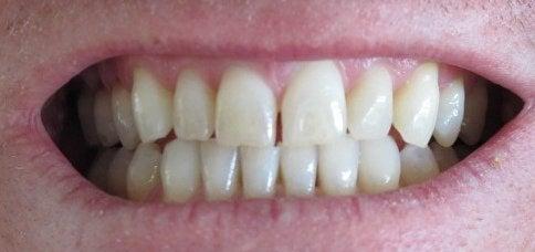 Tænder 3