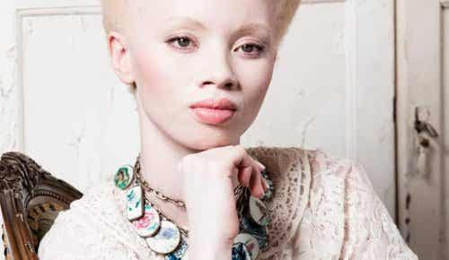 Albino-modellen Thando Hopas rørende fortælling