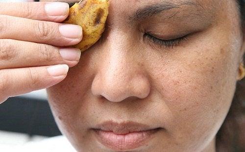 Kvinde der holder bananskrald paa ansigtet - hudorme og bumser