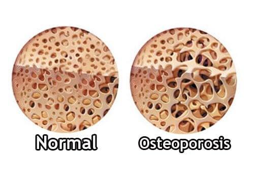 osteoporosis giver knoglesmerter