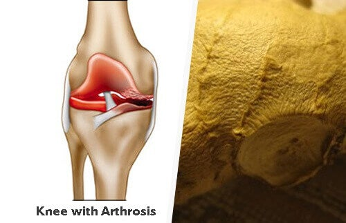 slidgigt i knæet alternativ behandling