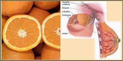 AppelsinerMælkekirtler