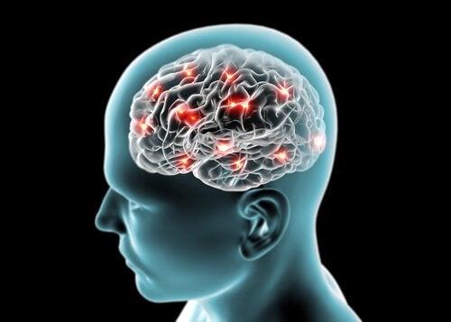 Hjerneaktivitet