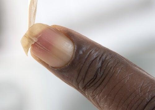 Styrk skøre negle