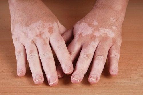 5 hjemmelavede midler mod vitiligo