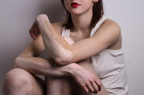 Der findes midler mod vitiligo, som du bør prøve, hvis du er træt af det brogede look