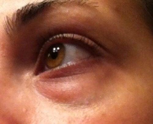 Sådan behandler du de mørke poser under øjnene naturligt