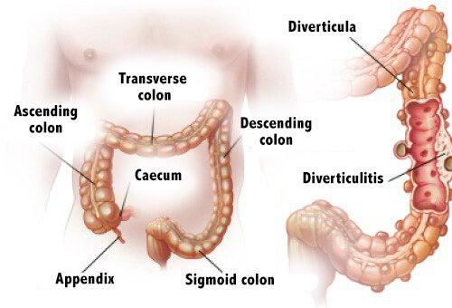 Diverticulitis og diverticulosis: Diagnose og behandling