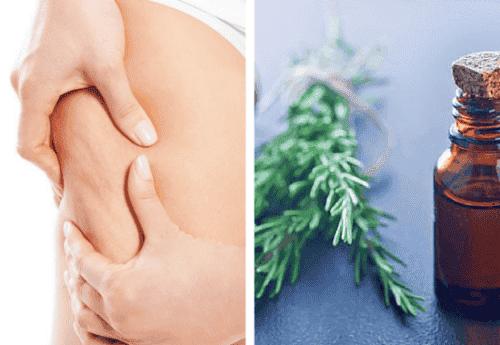 Rosmarin ekstrakt bekæmper cellulite