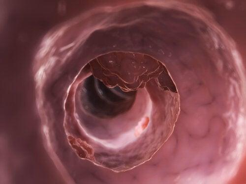 Tyktarm - diverticulitis og diverticulosis