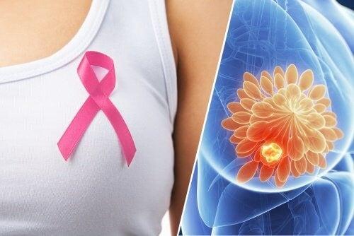 10 advarselstegn på brystkræft