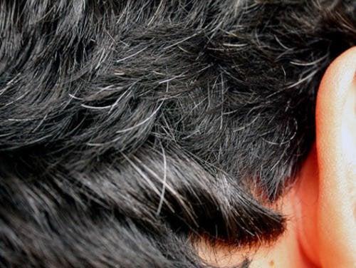 6 hjemmemidler der kan hjælpe mod tidlige grå hår
