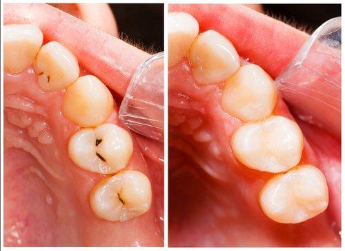 huller i tænder