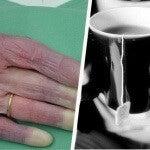Kolde hænder: Mulige årsager du bør kende