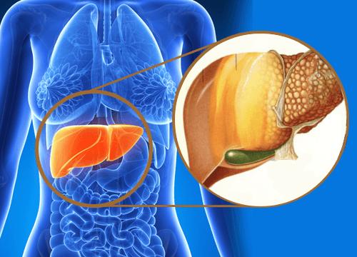 Hvad er hepatisk steatose? Hvordan behandles det?