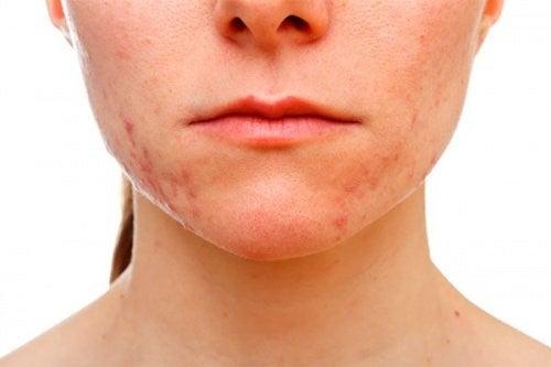 Kvinde med akne i ansigtet