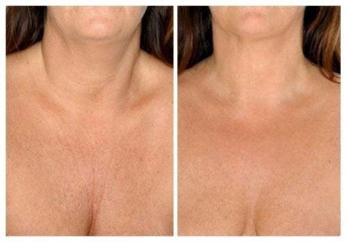 Sådan plejer du huden på din hals